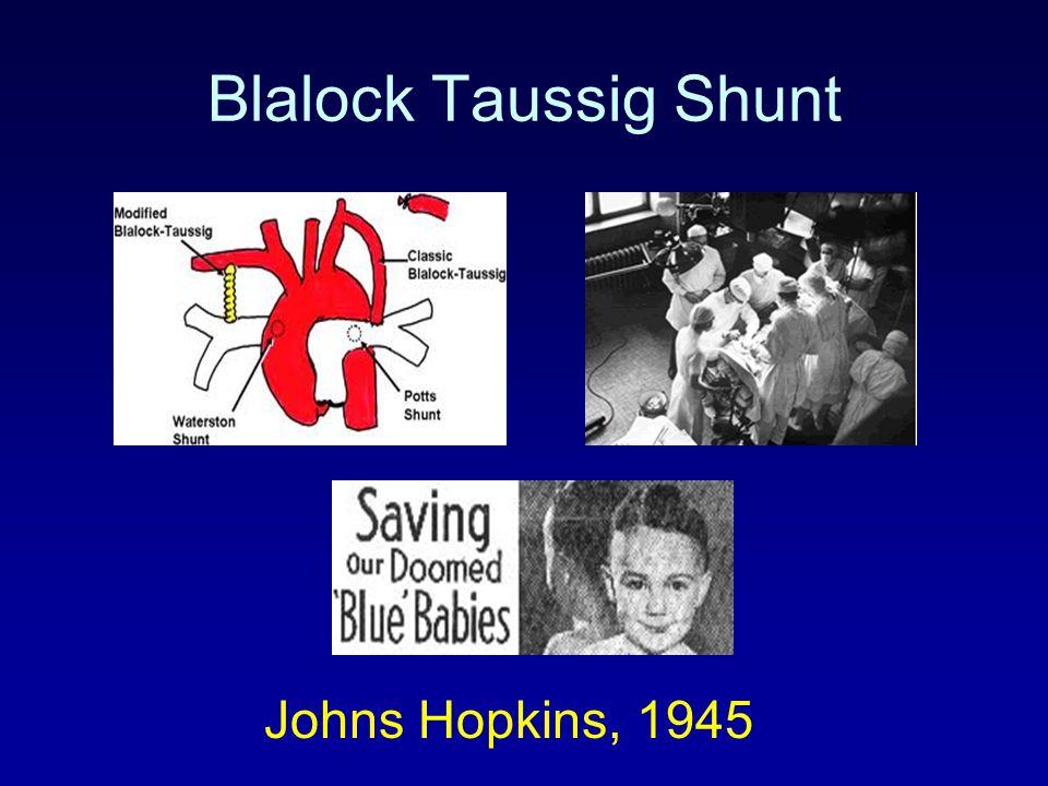Blalock Taussig Shunt Johns Hopkins, 1945