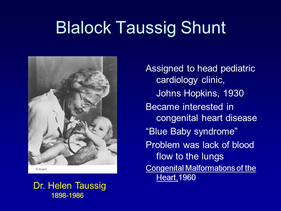 """Blalock Taussig Shunt Assigned to head pediatric cardiology clinic, Johns Hopkins, 1930 Became interested in congenital heart disease """"Blue Baby syndr"""