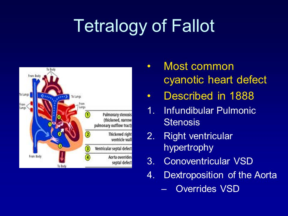 Tetralogy of Fallot Several types: –TOF with Pulmonic Stenosis –TOF with Pulmonary Atresia –TOF with Absent Pulmonary Valve –TOF with Complete AV Canal