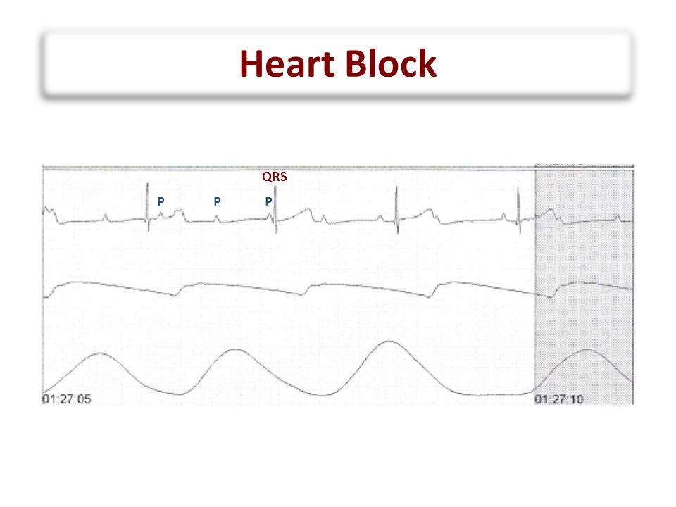 Heart Block Narrow QRS Wide QRS