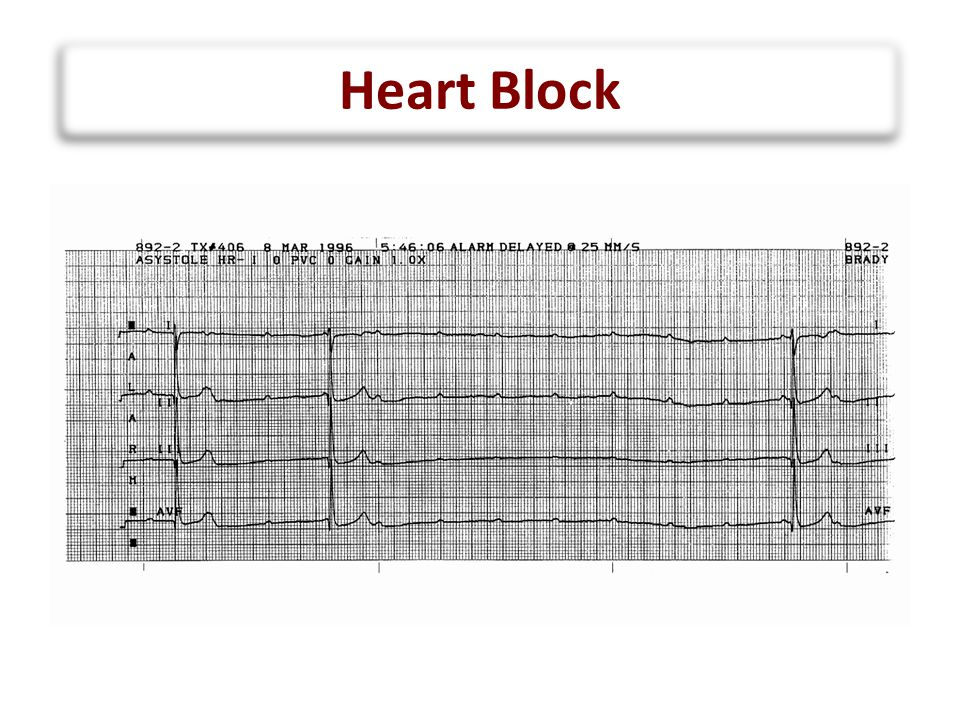 Arrhythmia Recognition FAST –S–Supraventricular Tachycardia Usual rate between 180 and 280 bpm Sudden onset and termination Minimal HR variation during SVT –J–Junctional Tachycardia Usual rate between 160 and 230 bpm Gradual onset and termination HR variation during JET
