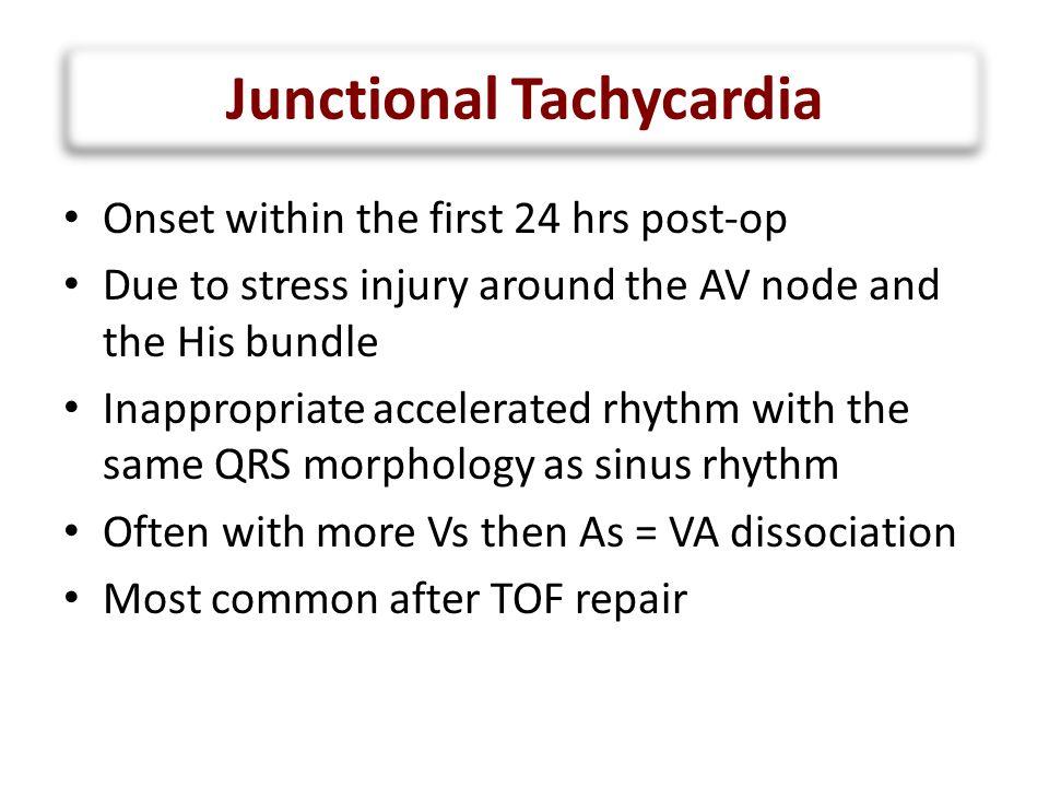 Junctional Tachycardia QRS P V A V A V V A