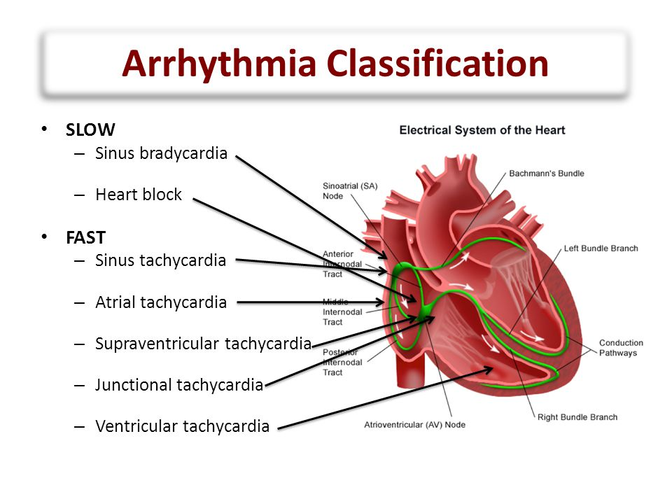 Arrhythmia Classification SLOW – Sinus bradycardia Intrinsic: sinus node dysfunction (rare) Extrinsic: medications (sedation …), increased ICP … – Heart block Results from damage to the AVN, His bundle or bundle branches FAST – Sinus tachycardia Common: medications (inotropes, sedation …), hemodynamic stress … – Atrial tachycardia Rare – Supraventricular tachycardia ORT or AVNRT or atrial flutter – Junctional tachycardia Relatively common: multifactorial – Ventricular tachycardia Rare, more of an issue 10-20-30 years post-op