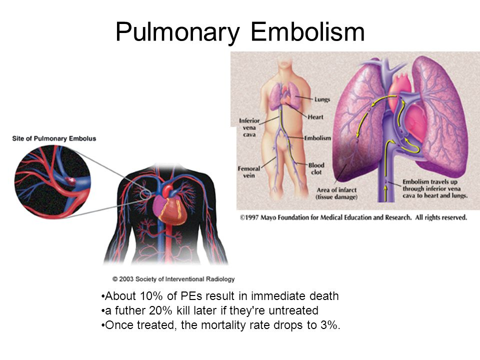 Pulmonary Embolism About 10% of PEs result in immediate death a futher 20% kill later if they're untreated Once treated, the mortality rate drops to 3