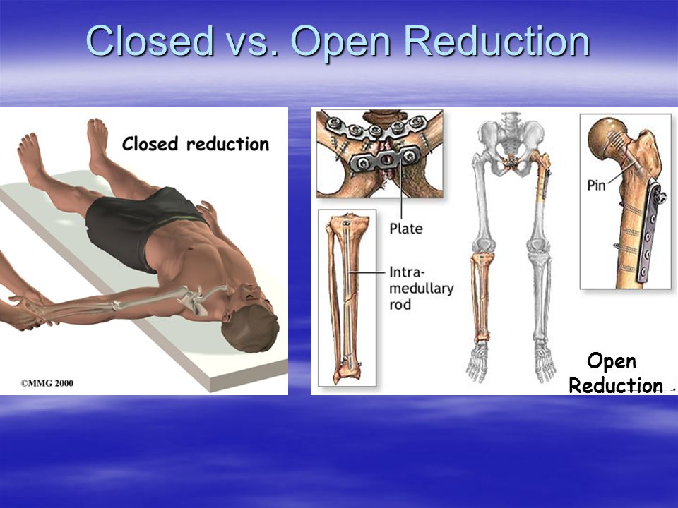 Open Reduction Closed vs. Open Reduction