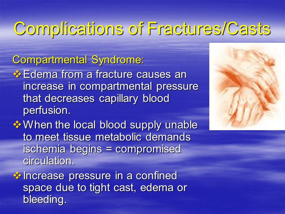 Complications of Fractures/Casts Compartmental Syndrome:  Edema from a fracture causes an increase in compartmental pressure that decreases capillary