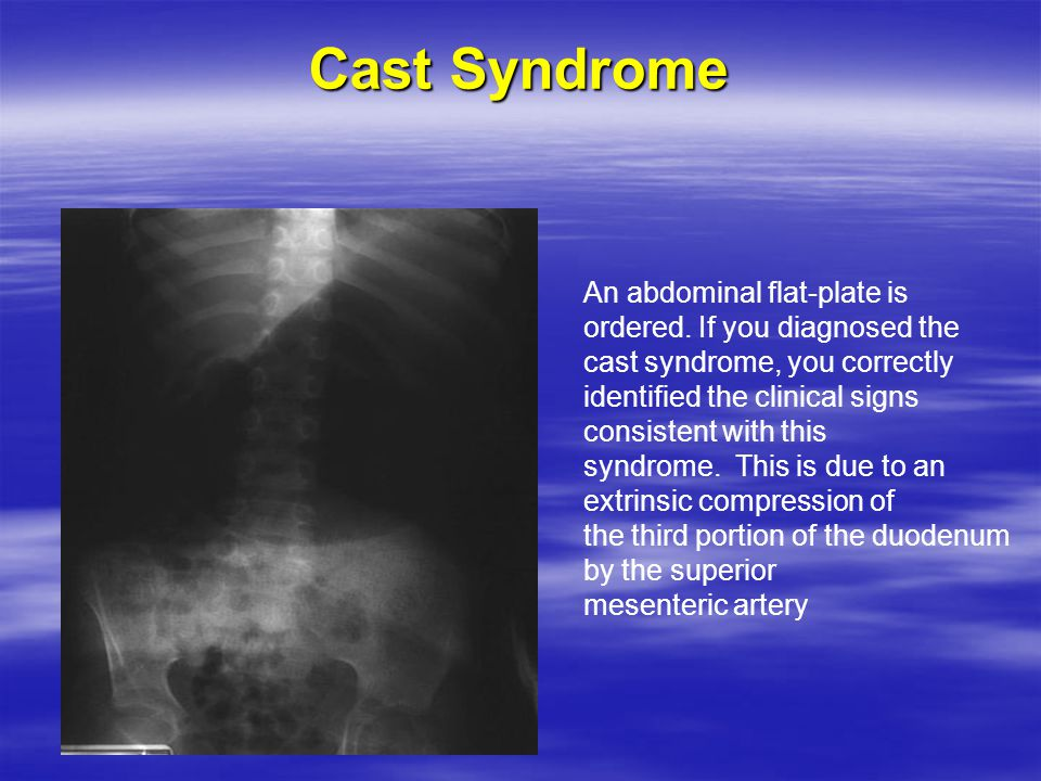 Cast Syndrome An abdominal flat-plate is ordered.