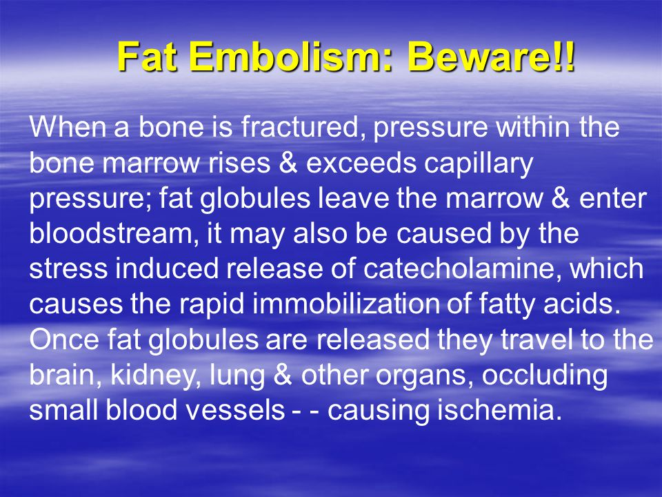 Fat Embolism: Beware!! When a bone is fractured, pressure within the bone marrow rises & exceeds capillary pressure; fat globules leave the marrow & e