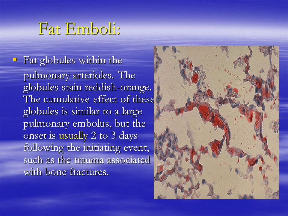 Fat Emboli:  Fat globules within the pulmonary arterioles.