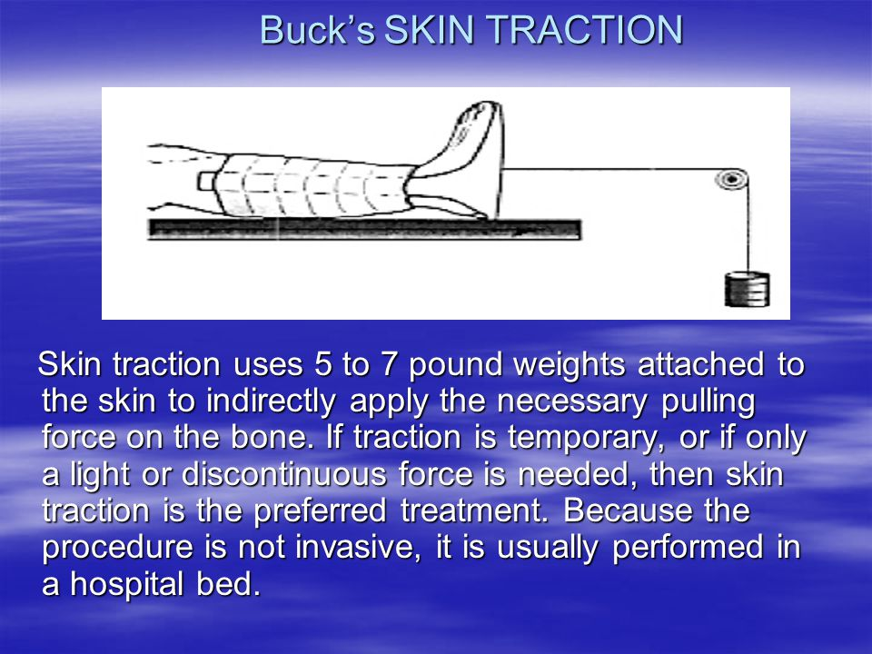 Buck's SKIN TRACTION Skin traction uses 5 to 7 pound weights attached to the skin to indirectly apply the necessary pulling force on the bone. If trac