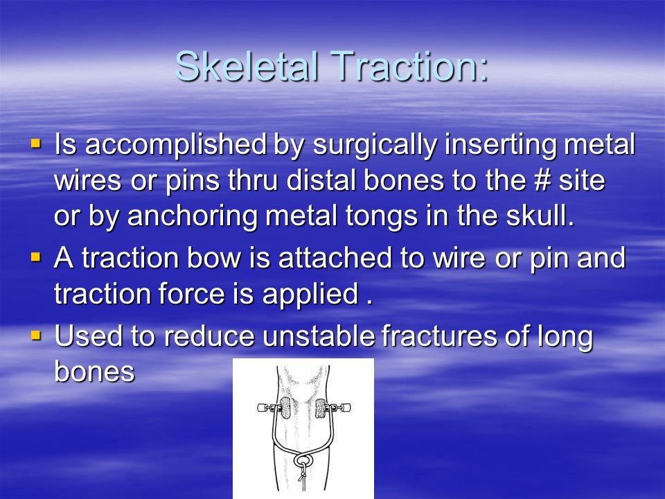 Skeletal Traction:  Is accomplished by surgically inserting metal wires or pins thru distal bones to the # site or by anchoring metal tongs in the skull.