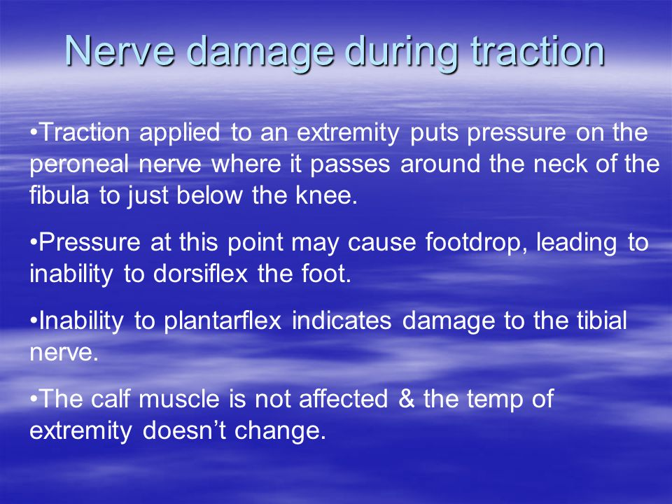 Nerve damage during traction Traction applied to an extremity puts pressure on the peroneal nerve where it passes around the neck of the fibula to just below the knee.