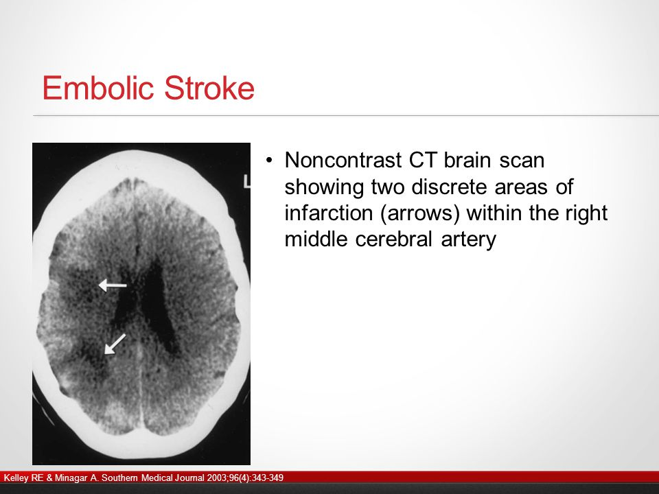 Embolic Stroke Noncontrast CT brain scan showing two discrete areas of infarction (arrows) within the right middle cerebral artery Kelley RE & Minagar A.