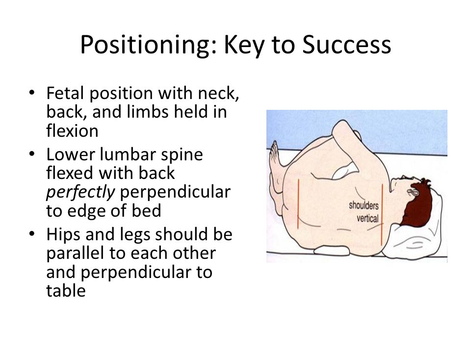 Positioning: Key to Success Fetal position with neck, back, and limbs held in flexion Lower lumbar spine flexed with back perfectly perpendicular to edge of bed Hips and legs should be parallel to each other and perpendicular to table