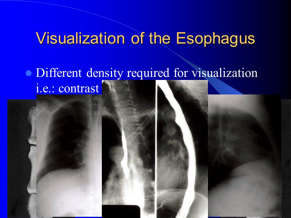 Visualization of the Esophagus Different density required for visualization i.e.: contrast