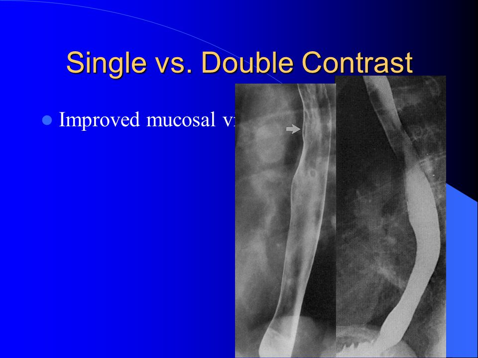Single vs. Double Contrast Improved mucosal visualization