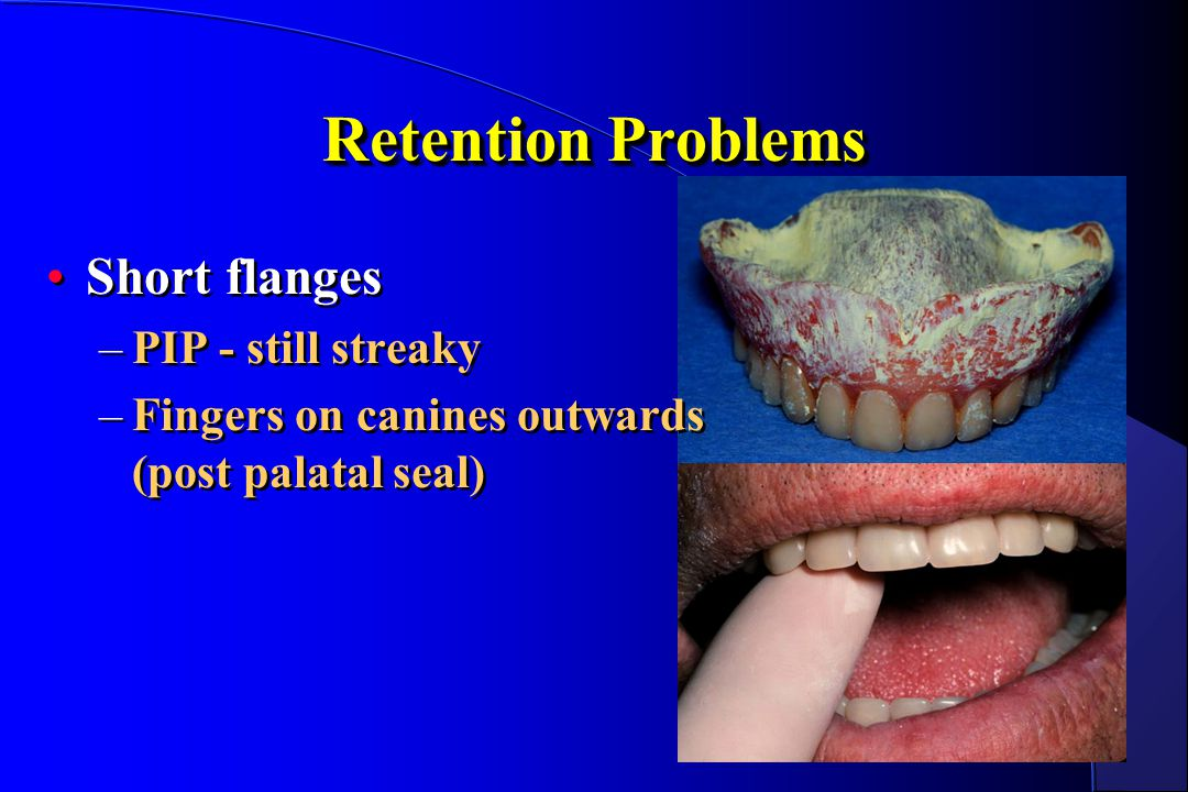 Retention Problems Short flanges –PIP - still streaky –Fingers on canines outwards (post palatal seal) Short flanges –PIP - still streaky –Fingers on
