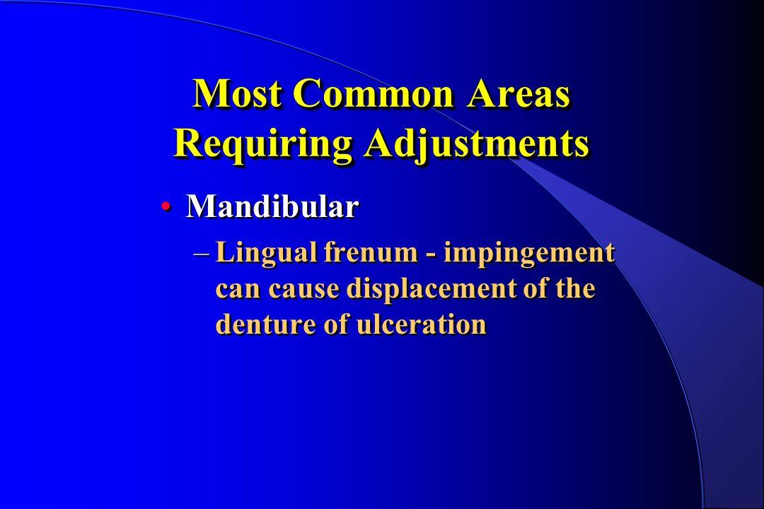 Most Common Areas Requiring Adjustments Mandibular –Lingual frenum - impingement can cause displacement of the denture of ulceration Mandibular –Lingu