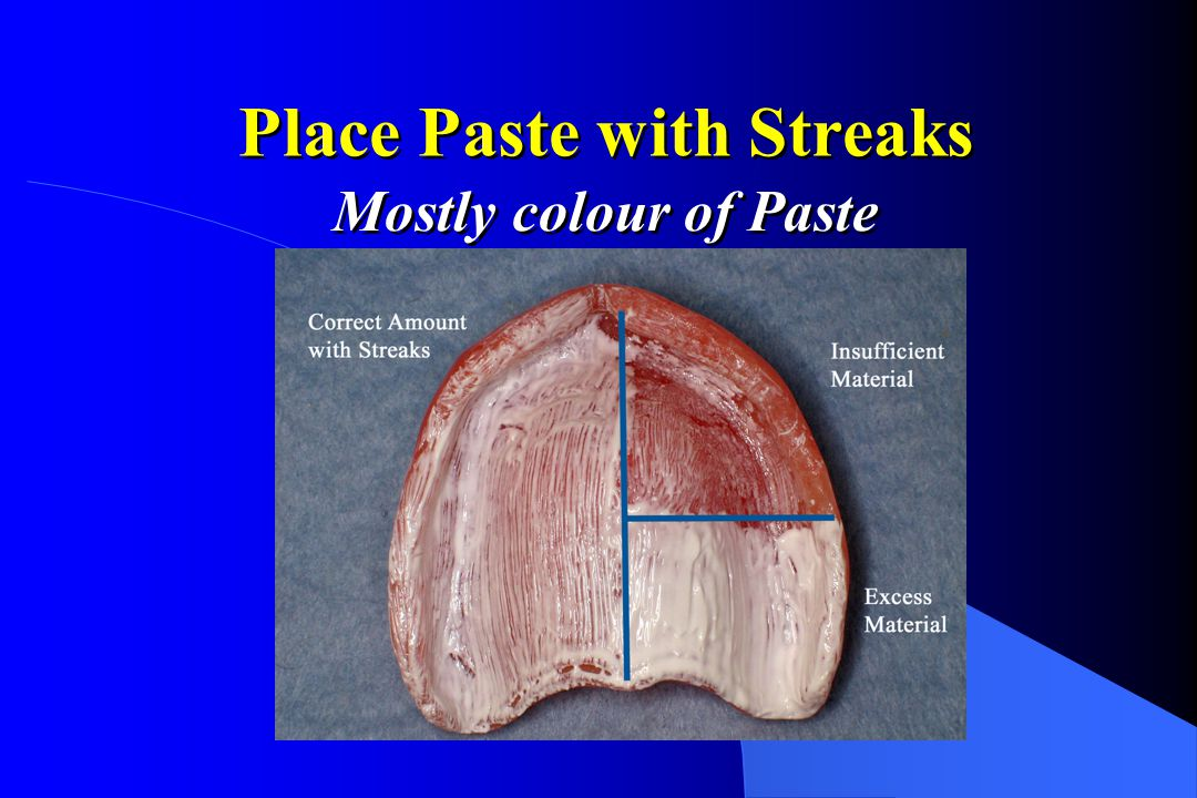 Pressure 1st Molars Streaks - no contact (N) No Paste - Impingement (I) Paste, no streaks - normal contact (C) Streaks - no contact (N) No Paste - Impingement (I) Paste, no streaks - normal contact (C)