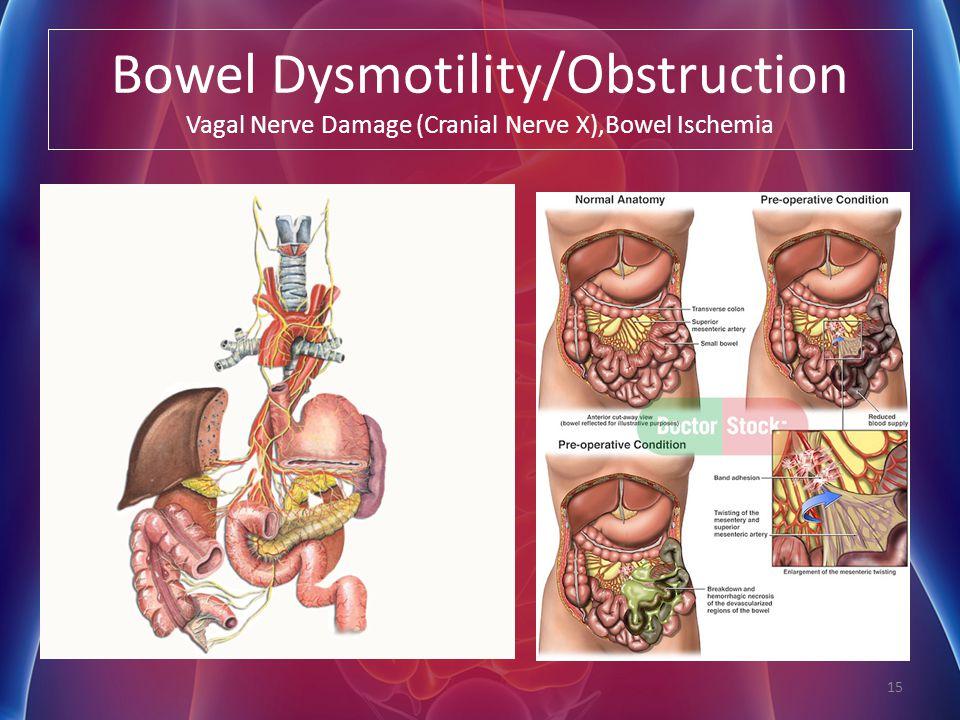 Bowel Dysmotility/Obstruction Vagal Nerve Damage (Cranial Nerve X),Bowel Ischemia 15