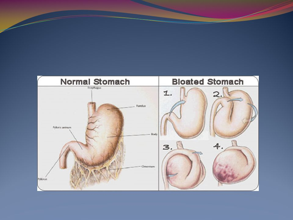 Gastric Dilation Volvulus Clinical Signs Anxious/uncomfortable Retching Salivation Tachypnea Distended, painful abdomen Large tympanic anterior abdomen Brick red mucous membranes