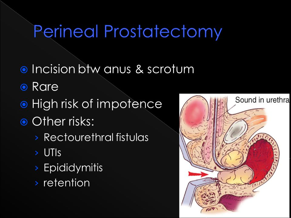  Incision btw anus & scrotum  Rare  High risk of impotence  Other risks: › Rectourethral fistulas › UTIs › Epididymitis › retention