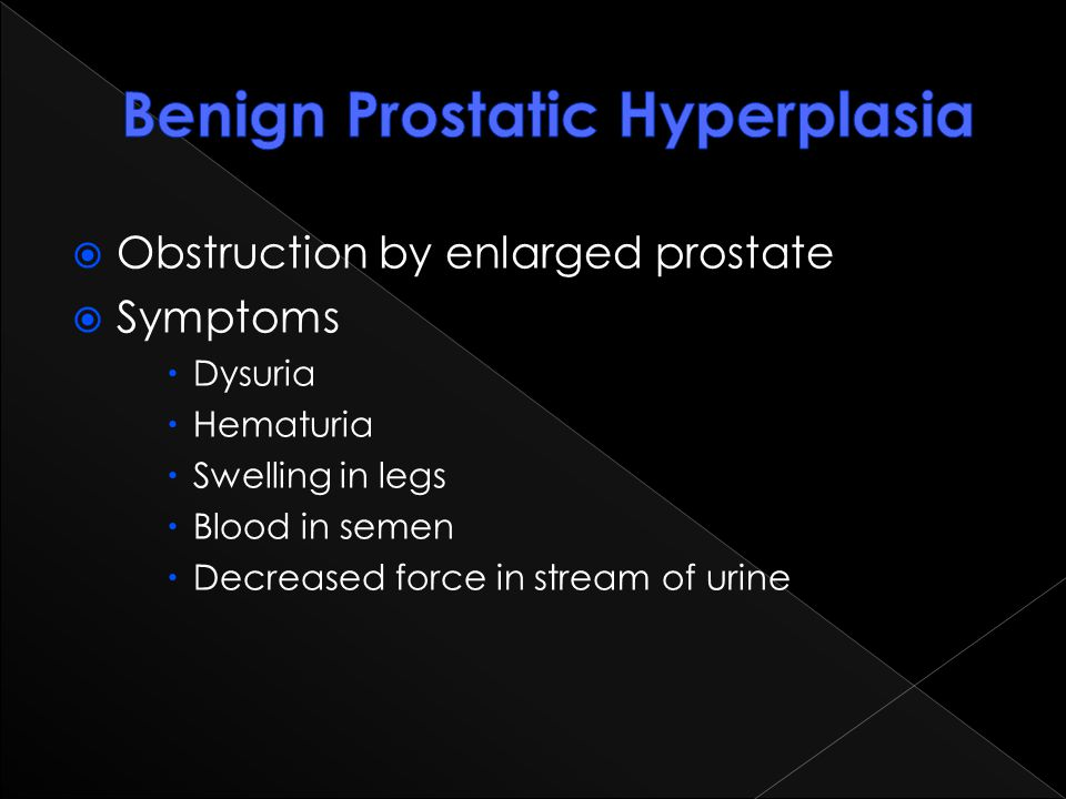  Obstruction by enlarged prostate  Symptoms  Dysuria  Hematuria  Swelling in legs  Blood in semen  Decreased force in stream of urine