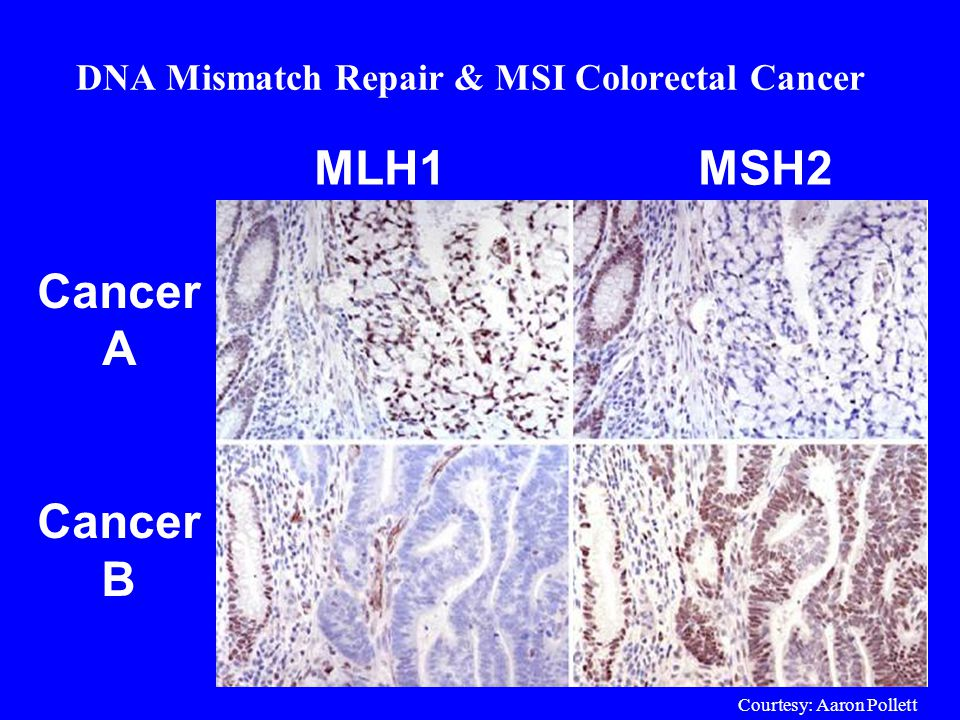 DNA Mismatch Repair & MSI Colorectal Cancer Cancer A Cancer B MLH1MSH2 Courtesy: Aaron Pollett