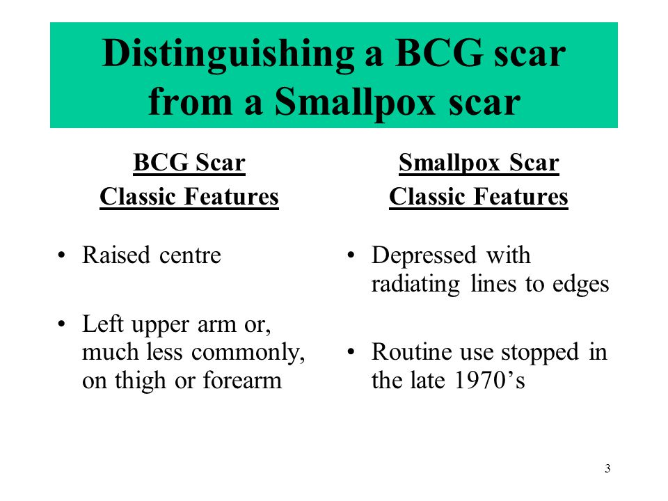 3 Distinguishing a BCG scar from a Smallpox scar BCG Scar Classic Features Raised centre Left upper arm or, much less commonly, on thigh or forearm Sm