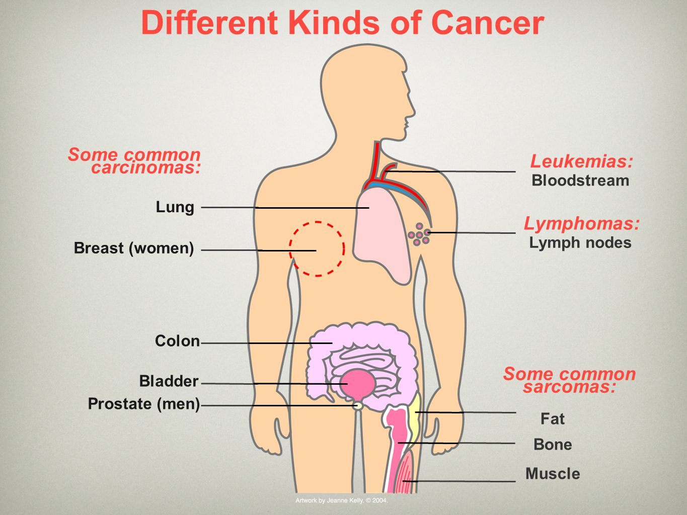 Different Kinds of Cancer Fat Bone Muscle Lymphomas: Leukemias: Some common carcinomas: Lung Breast (women) Colon Prostate (men) Bladder Lymph nodes B