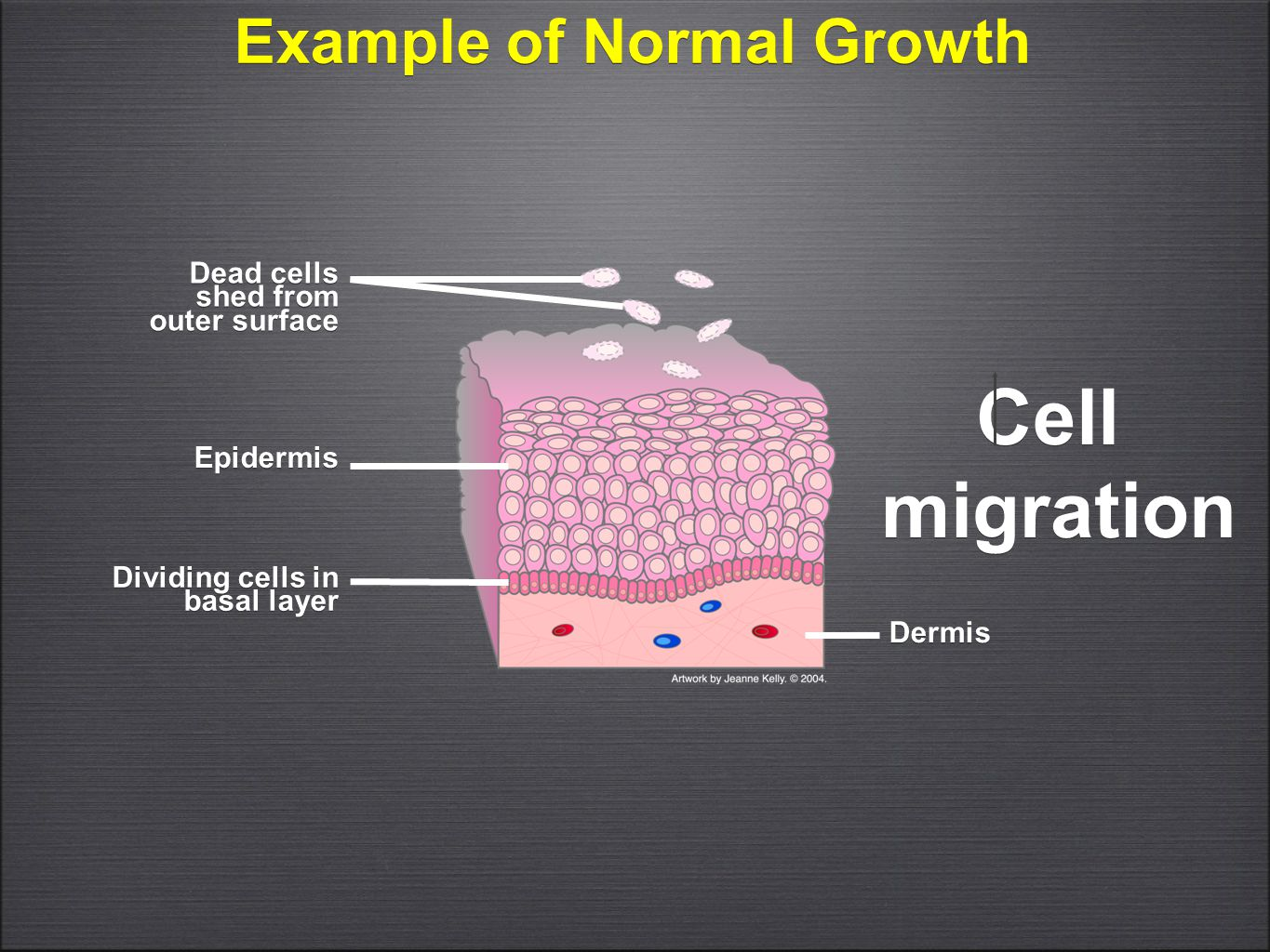 Example of Normal Growth Cell migration Cell migration Dermis Dividing cells in basal layer Dead cells shed from outer surface Epidermis
