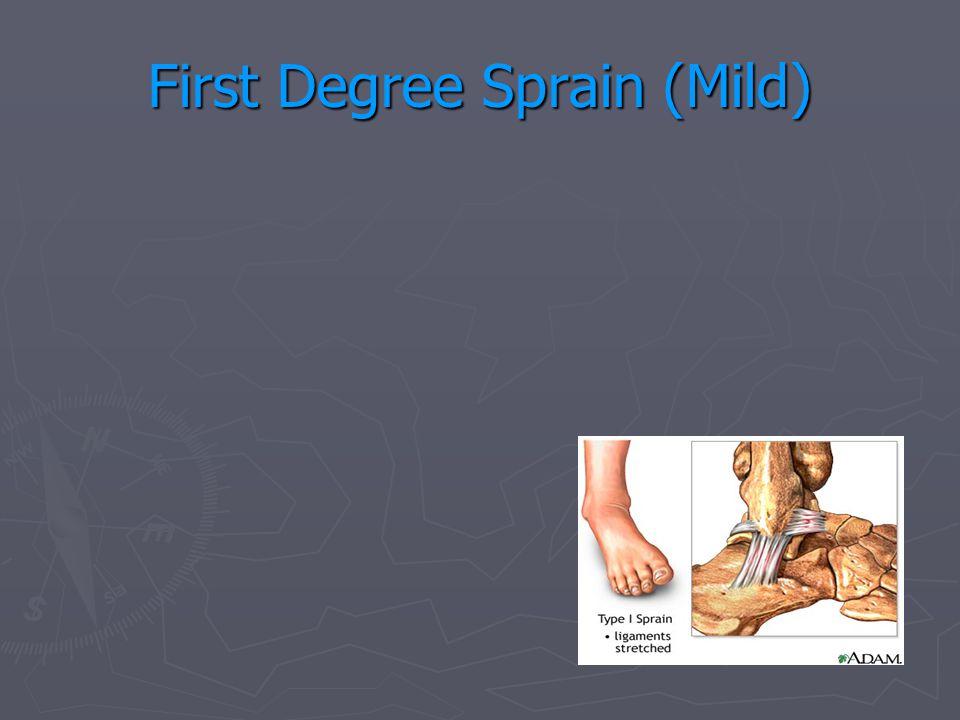 First Degree Sprain (Mild)