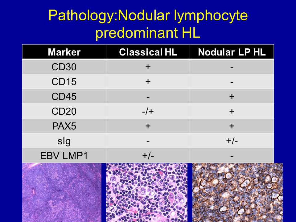 Pathology:Nodular lymphocyte predominant HL MarkerClassical HLNodular LP HL CD30+- CD15+- CD45-+ CD20-/++ PAX5++ sIg-+/- EBV LMP1+/--