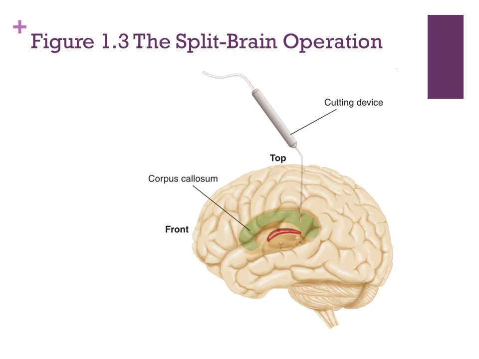 + Figure 1.3 The Split-Brain Operation