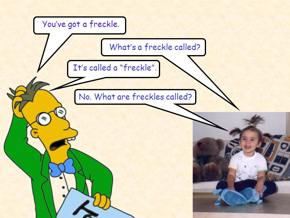 """You've got a freckle. What's a freckle called? It's called a """"freckle"""". No. What are freckles called?"""