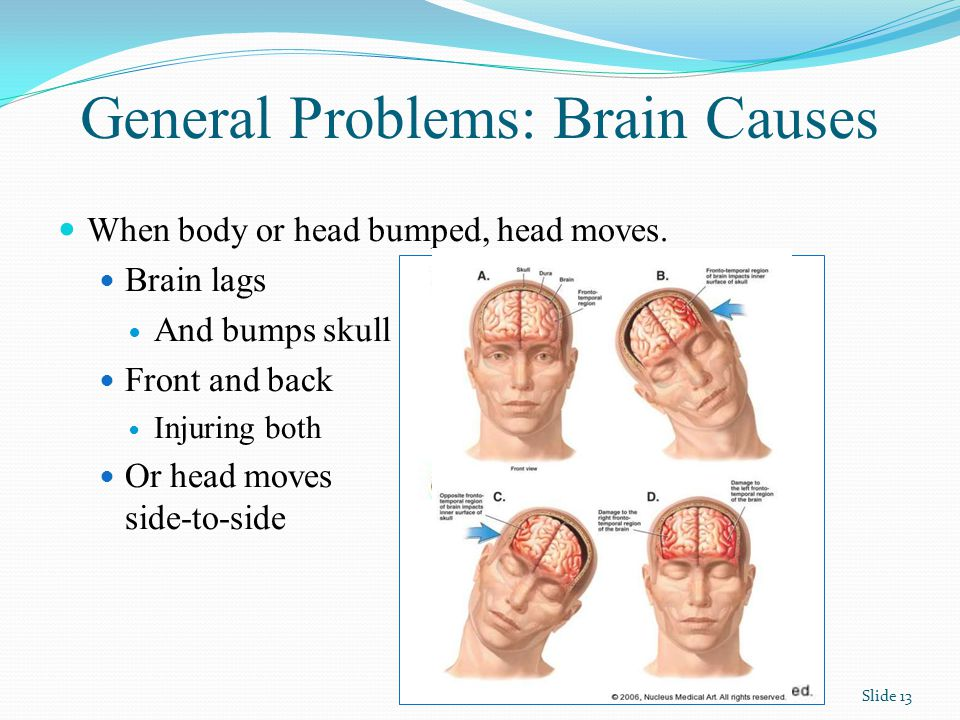 General Problems: Brain Causes Slide 13 When body or head bumped, head moves.