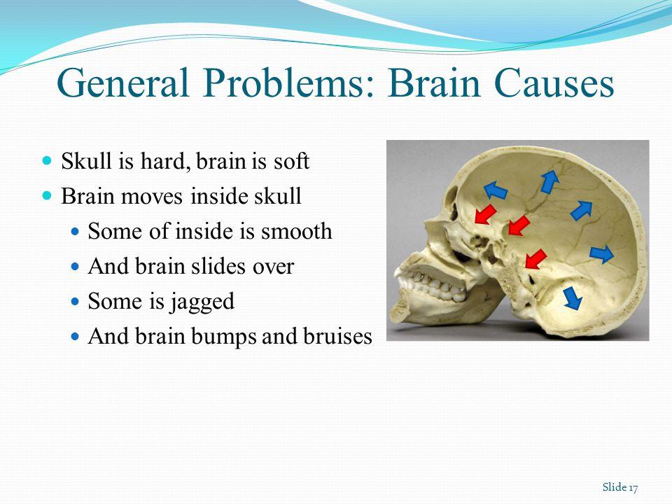 Mind Problems: Brain Causes Frontal Lobe Damage Front of brain Hits front of skull Brain above eyeballs Hits skull above eyeballs Frontal lobe – Control centre Planning, organizing Action coordinator Emotion Interpreter Inhibitions Slide 18