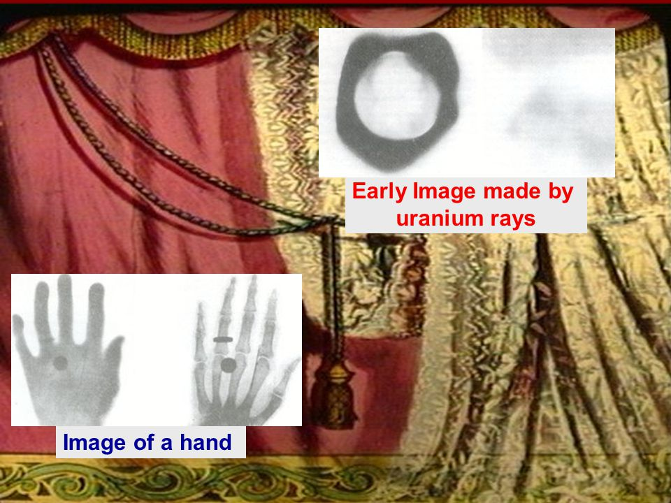 Image of a hand Early Image made by uranium rays