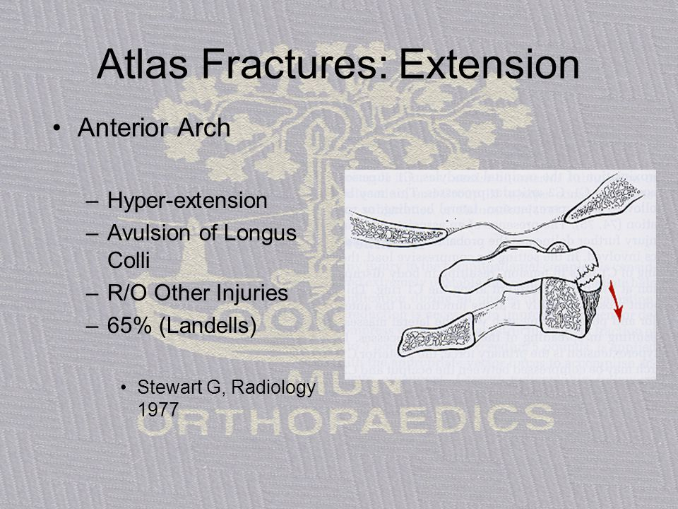 Atlas Fractures: Extension Anterior Arch –Hyper-extension –Avulsion of Longus Colli –R/O Other Injuries –65% (Landells) Stewart G, Radiology 1977