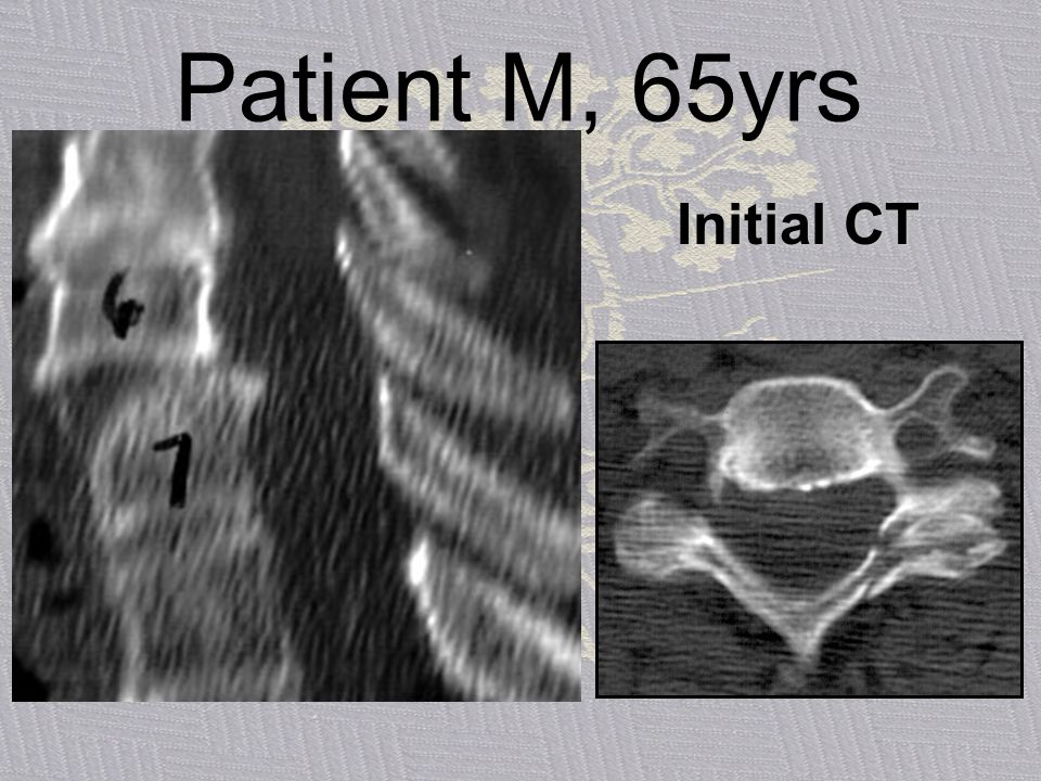 Patient M, 65yrs Initial CT