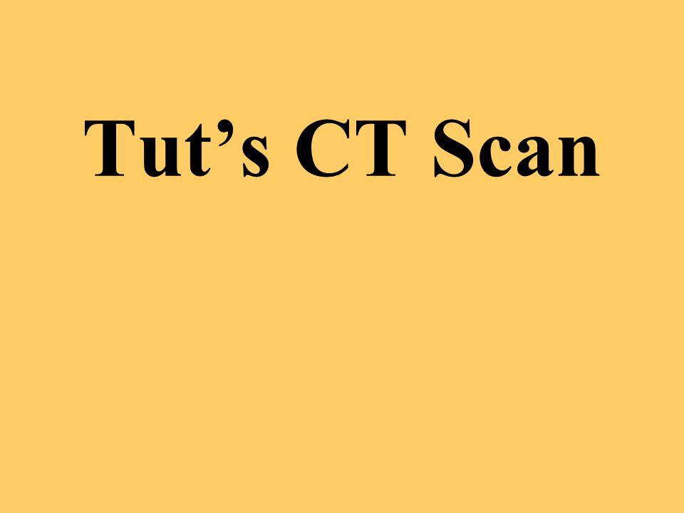 Tut's CT Scan