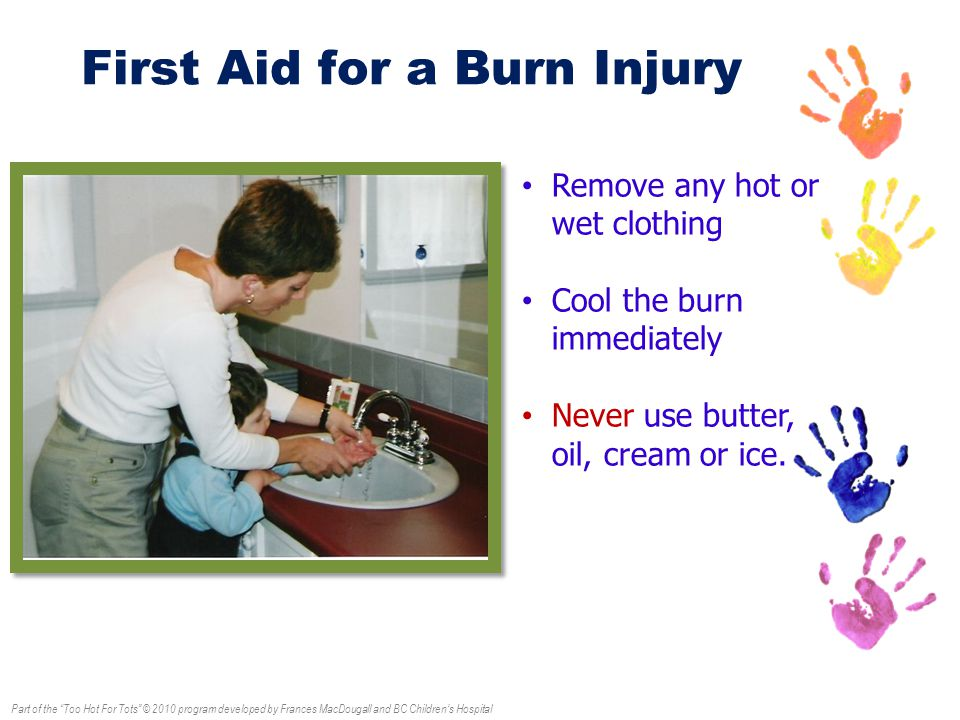 Part of the Too Hot For Tots © 2010 program developed by Frances MacDougall and BC Children's Hospital First Aid for a Burn Injury Remove any hot or wet clothing Cool the burn immediately Never use butter, oil, cream or ice.