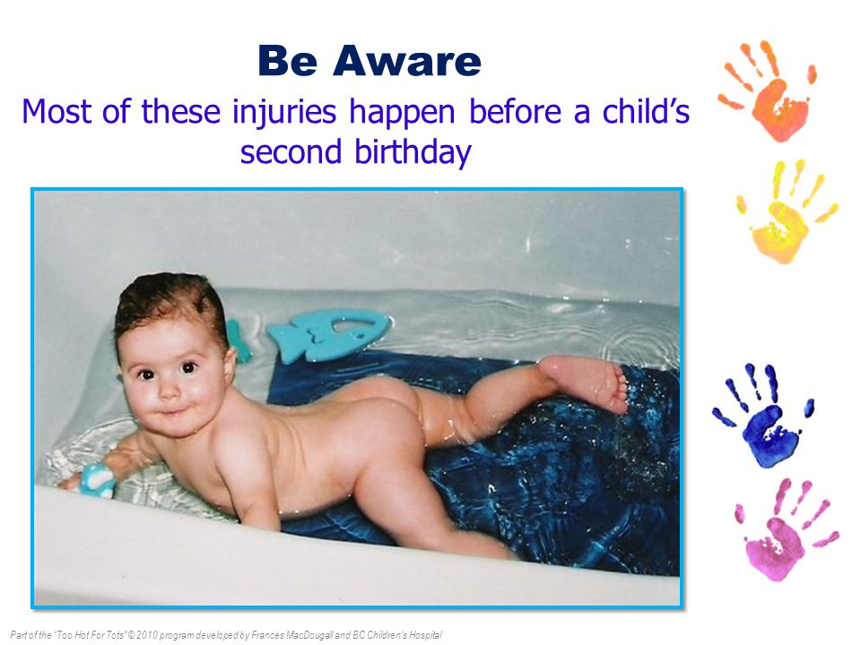 Part of the Too Hot For Tots © 2010 program developed by Frances MacDougall and BC Children's Hospital Be Aware Most of these injuries happen before a child's second birthday