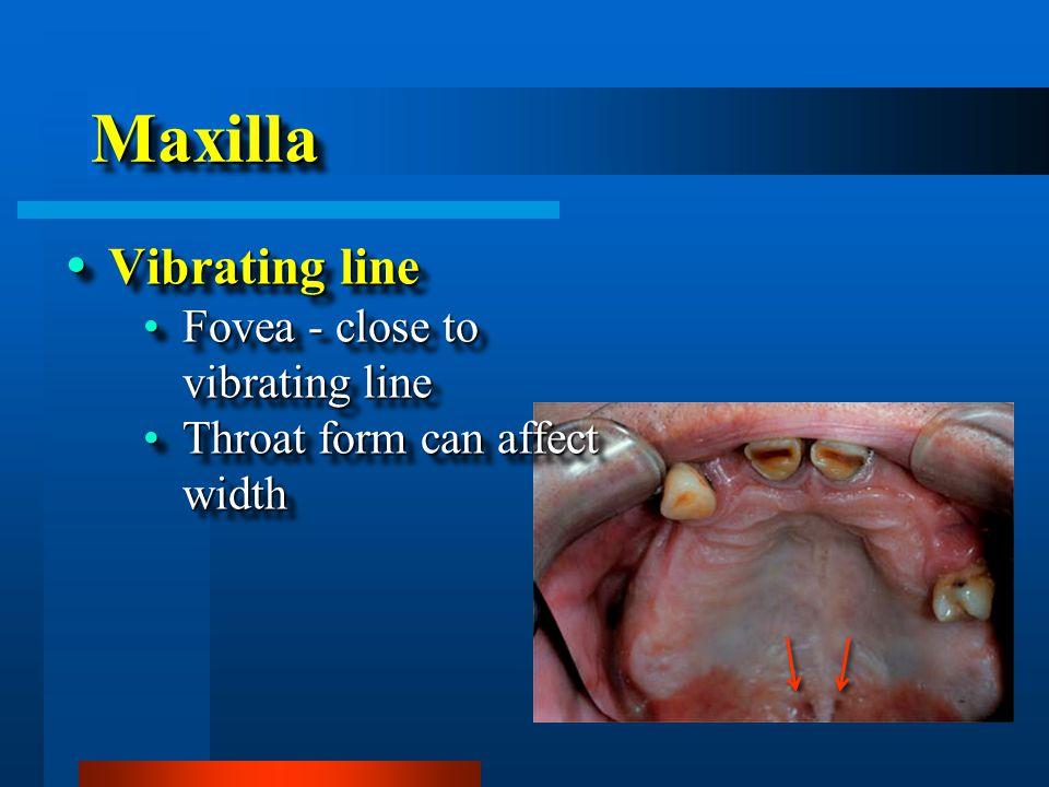 MaxillaMaxilla  Vibrating line Fovea - close to vibrating lineFovea - close to vibrating line Throat form can affect widthThroat form can affect width  Vibrating line Fovea - close to vibrating lineFovea - close to vibrating line Throat form can affect widthThroat form can affect width