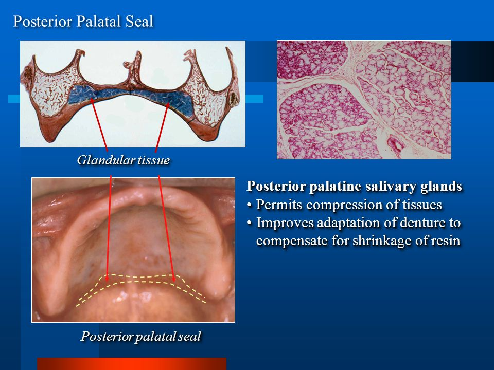 Glandular tissue Posterior palatal seal Posterior palatine salivary glands Permits compression of tissuesPermits compression of tissues Improves adaptation of denture to compensate for shrinkage of resinImproves adaptation of denture to compensate for shrinkage of resin Posterior palatine salivary glands Permits compression of tissuesPermits compression of tissues Improves adaptation of denture to compensate for shrinkage of resinImproves adaptation of denture to compensate for shrinkage of resin Posterior Palatal Seal