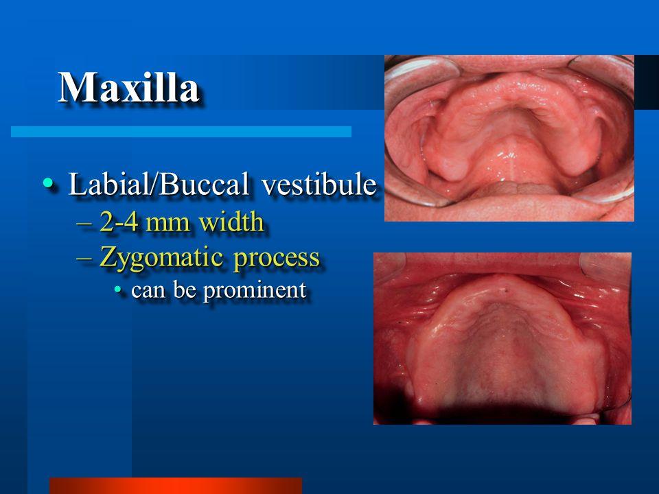 MaxillaMaxilla  Labial/Buccal vestibule –2-4 mm width –Zygomatic process can be prominentcan be prominent  Labial/Buccal vestibule –2-4 mm width –Zygomatic process can be prominentcan be prominent