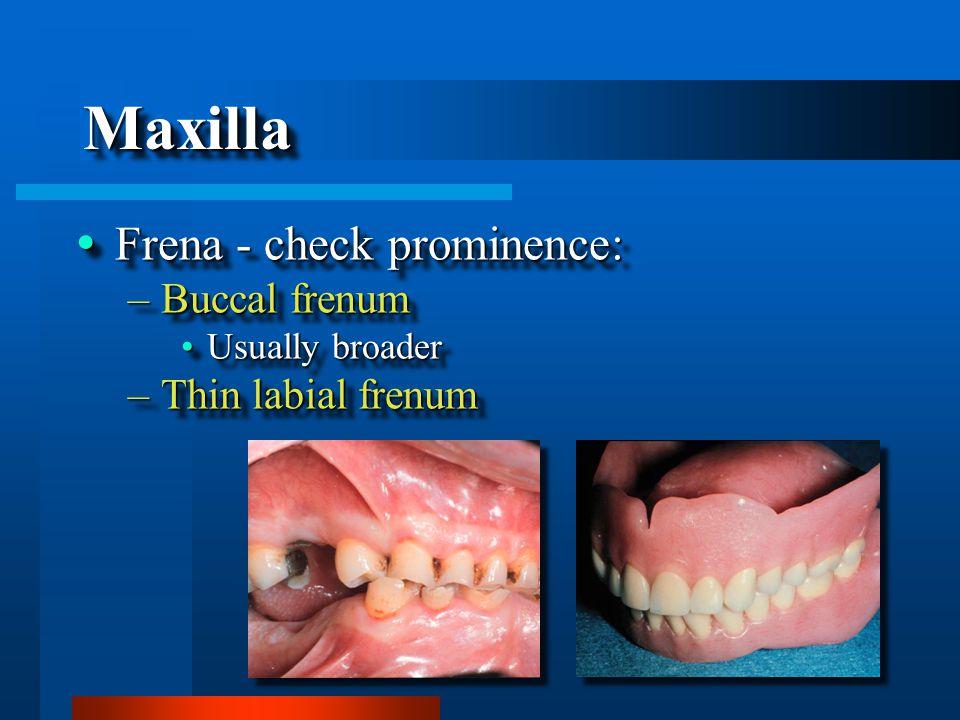 MaxillaMaxilla  Frena - check prominence: –Buccal frenum Usually broaderUsually broader –Thin labial frenum  Frena - check prominence: –Buccal frenum Usually broaderUsually broader –Thin labial frenum