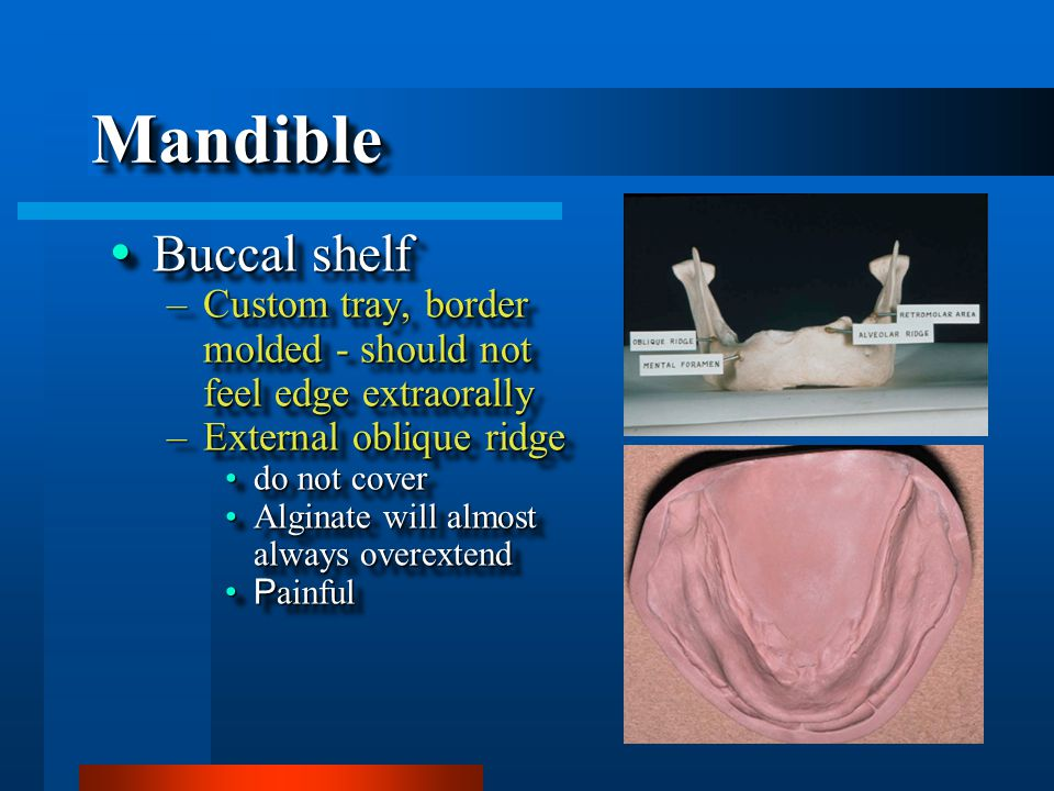 MandibleMandible  Buccal shelf –Custom tray, border molded - should not feel edge extraorally –External oblique ridge do not coverdo not cover Alginate will almost always overextendAlginate will almost always overextend P ainfulP ainful  Buccal shelf –Custom tray, border molded - should not feel edge extraorally –External oblique ridge do not coverdo not cover Alginate will almost always overextendAlginate will almost always overextend P ainfulP ainful