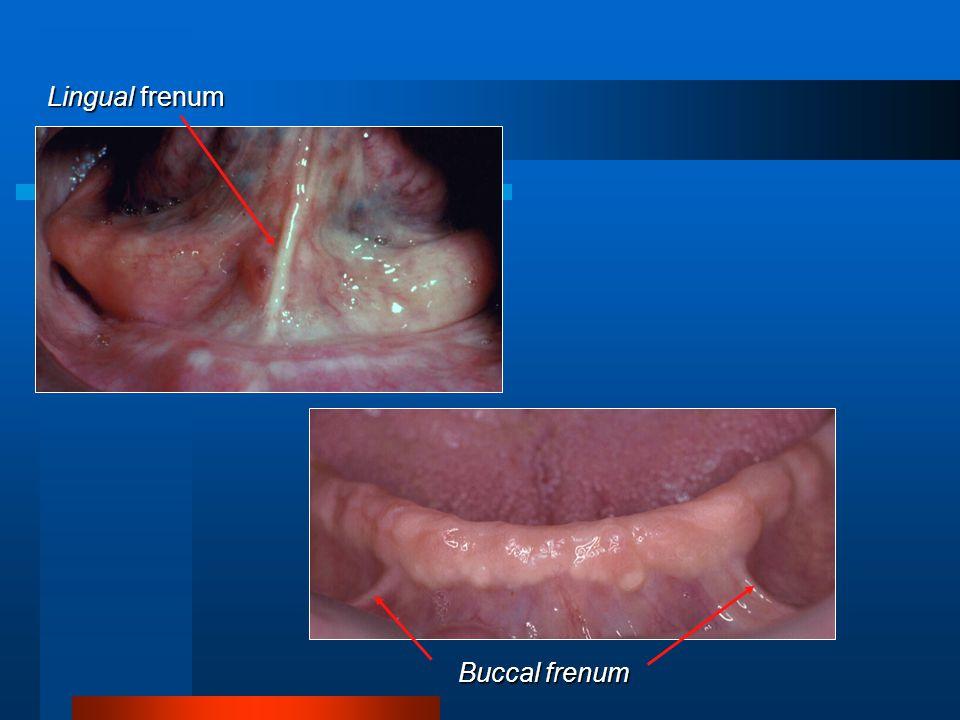 Buccal frenum Lingual frenum