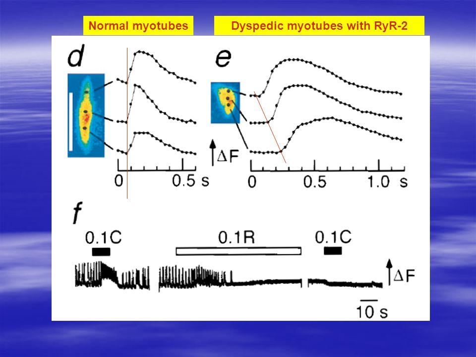 Normal myotubesDyspedic myotubes with RyR-2